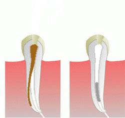 Leczenie endodontyczne pod mikroskopem