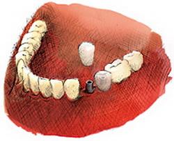 Implant zęba Wrocław Cena