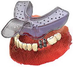 Korona zęba cyrkonowa na implancie