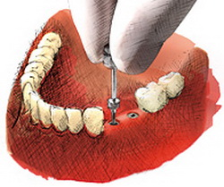 Korony na implantach cennik