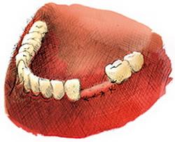 implanty zębów cena