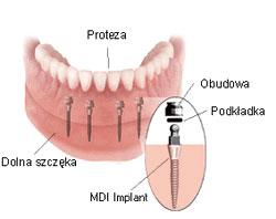 proteza na miniimplantach Wrocław