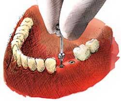 Mosty porcelanowe na implantach