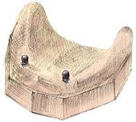 Implanty kulkowe wrocław