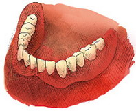 Odbudowa na implantach