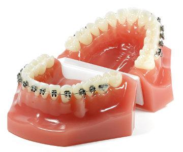 Leczenie ortodontyczne aparatem stałym