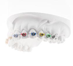 Ligatury na aparacie ortodontycznym