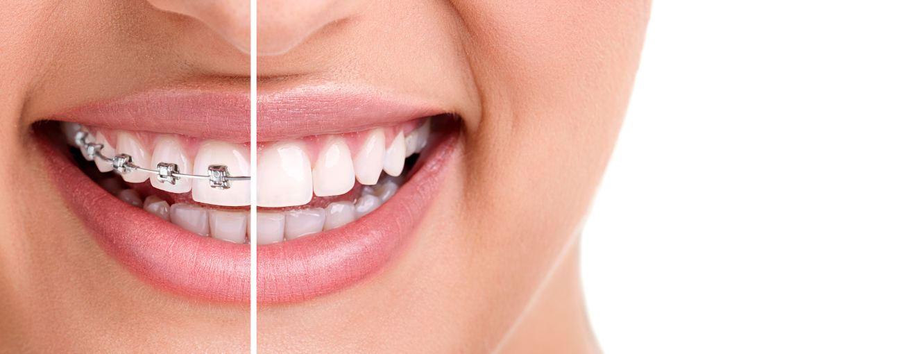 Ortodoncja leczenie