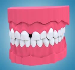 Diastema ortodoncja wroclaw
