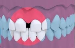Ortodontyczne zamykanie diastemy wroclaw