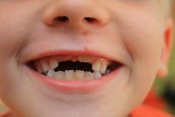 Fluoryzacja zębów Wrocław